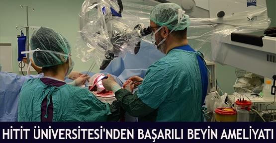 Hitit Üniversitesi'nden Başarılı Beyin Ameliyatı