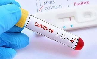 Koronavirüsle mücadelede 3 projeye destek